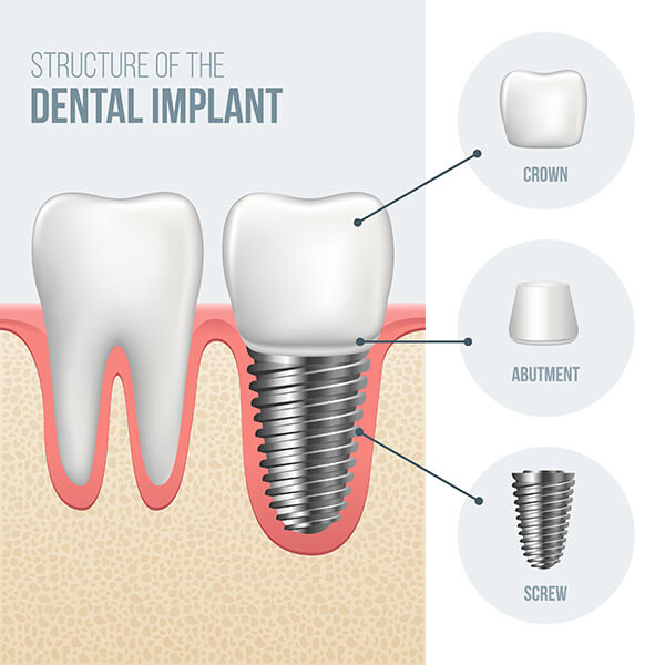 Implant Breakdown