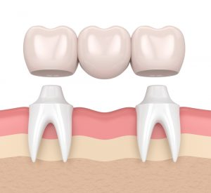 render of a dental bridge
